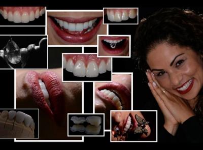 Curso Avançado de Fotografia Odontológica & Artistica