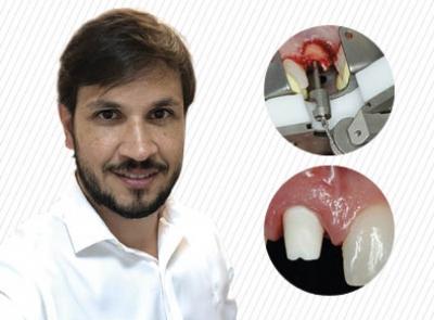 Implante Imediato e Reconstrução Tecidual – Como atingir os melhores resultados na área estética?