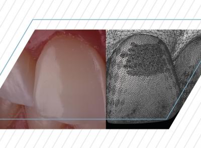 Odontologia Digital com a Telemetria Dental: O que a Tecnologia 3D pode fazer por você?