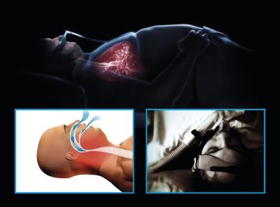 Curso de Capacitação Multiprofissional em medicina do Sono