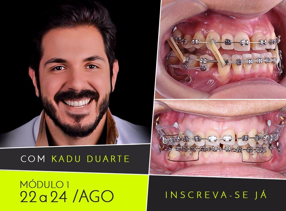 Ortodontia Multidiciplinar: Diagnósticos 3D & Ancoragens Esqueléticas