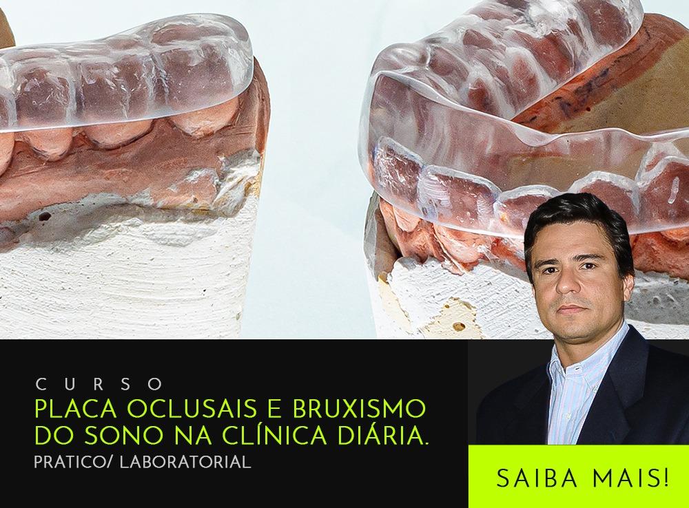 Placa Oclusais e Bruxismo do Sono na Clínica Diária. Pratico/ Laboratorial