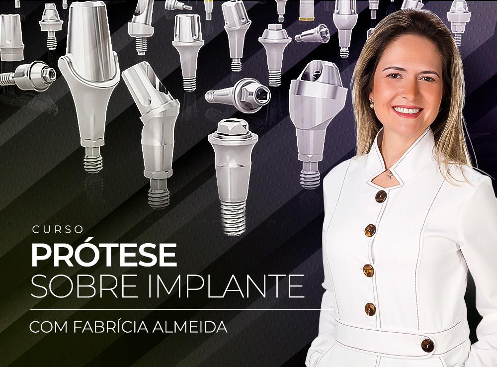 Princípios básicos da prótese sobre implante